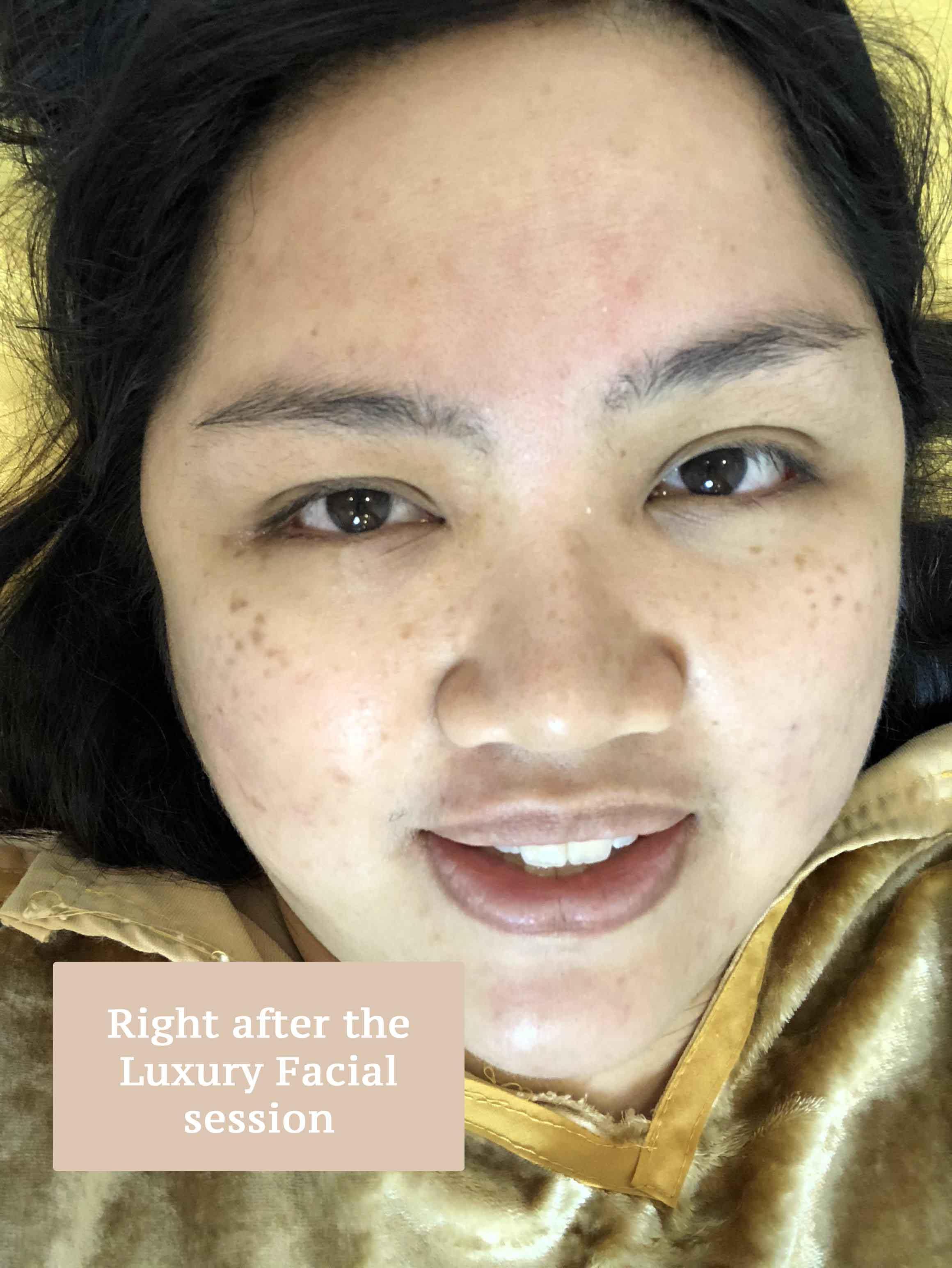 First Day High: My Starwalker Angel White Laser Treatment Day 1 at